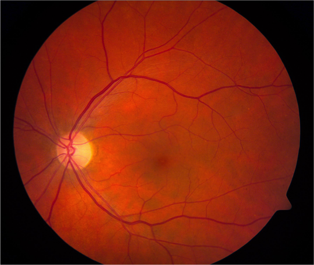 Normal Fundus2